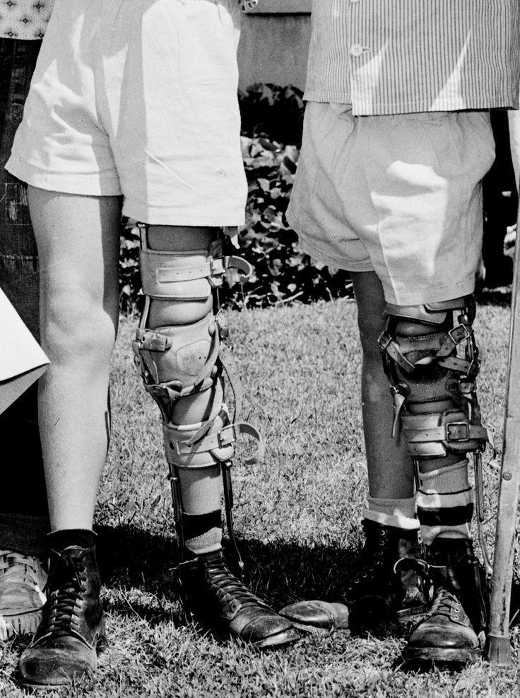 legs polio braces calipers glass evil unicorn teeth menagerie vision visit