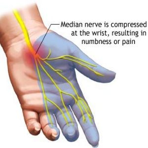 Natural Cures For Carpal Tunnel - Ways To Treat Carpal Tunnel | Home Remedies, Natural Remedy