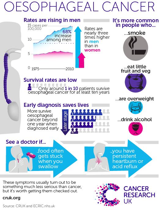"The biggest story this week was about the ""quiet epidemic"" of oesophageal cancer and the fact that men are nearly three times more likely to develop the disease. The BBC and the Independent have more info, and this graphic summarises the story: Testing women for the human papillomavirus (HPV) first, instead of using the traditional [...]"