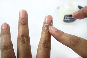 How to fix the skin around your nails