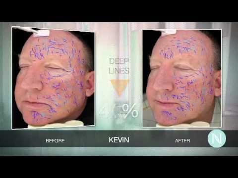 CIENCIA DE NERIUM EN ESPAÑOL - YouTube www.karenmirlu.nerium.com