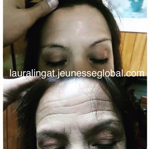 Amazing #results with #InstantlyAgeless!! NO #botox NO #plasticsurgery needed