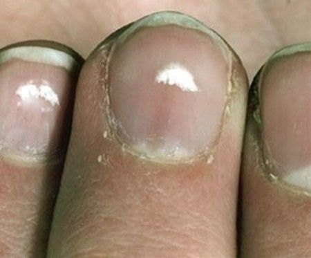 white spots on toenails