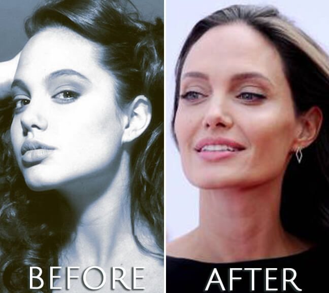 Angelina Jolie plastic surgery before and after photo. #angelinajolie #lips