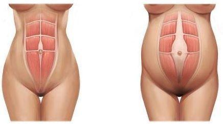 GINÁSTICA PARA Diástase do reto abdominal
