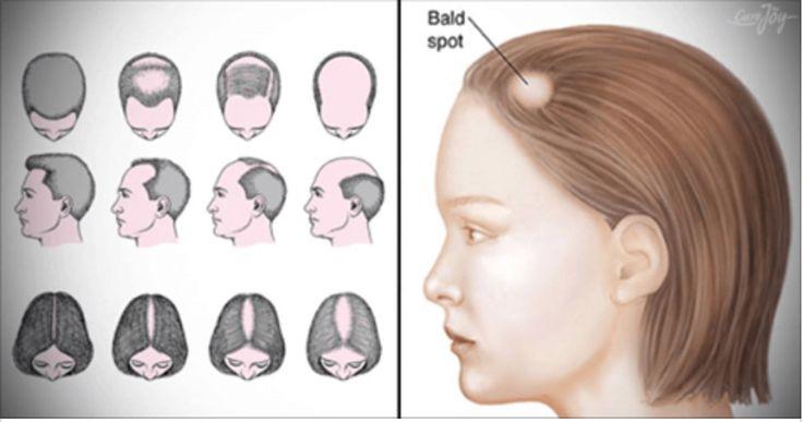 15 remédios caseiros para tratar a alopecia areata que você ainda não tentou! | Cura pela Natureza