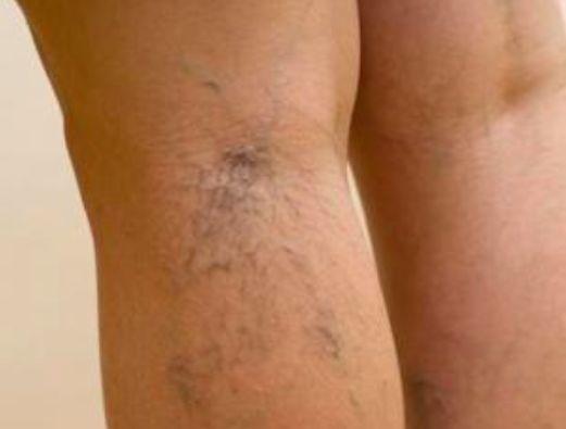 7 remèdes pour se débarrasser des petites varices noté 3.7 - 10 votes Les varicosités sont de petites veines superficielles anormalement dilatées qui sont visibles à travers la peau. Plus ou moins fines, elles traduisent une fragilité de la circulation veineuse.On les retrouve au niveau des membres inférieurs, et très souvent sur le visage où …