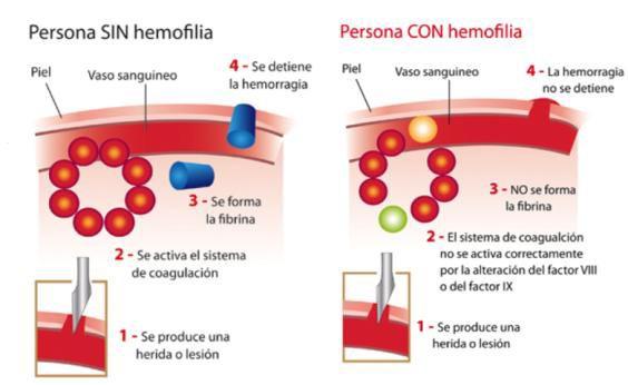 Diferencias entre hemofilia A y B. Esta diferencia se basa basicamente en la diferencia del factor al que influye ya que en la hemofilia A es el factor  VIII, y en la B por falta del factor IX. los dos tipos manifiestan los mismos sintomas. Una diferencia a reseñar es que la hemofilia B es 5 veces menos frecuente que la A.