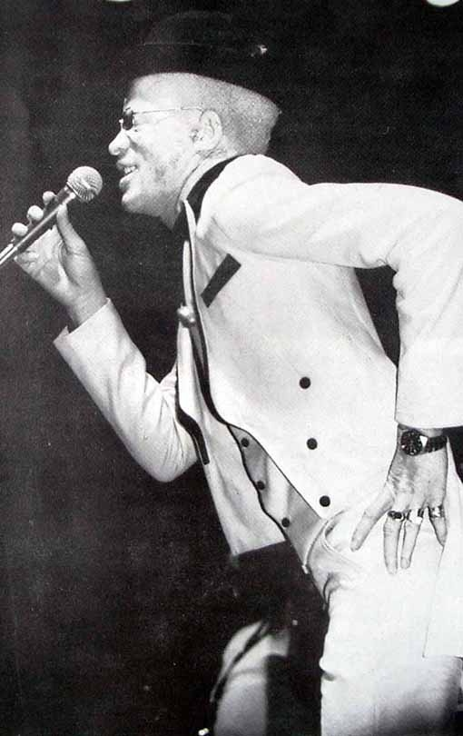 """Yellowman- is Jamaica first albino dancehall superstar. He is also responsible for the creation of slackness. He chose humor instead of violence in his stage presence. Check out """"Zungguzungguguzungguzeng"""""""