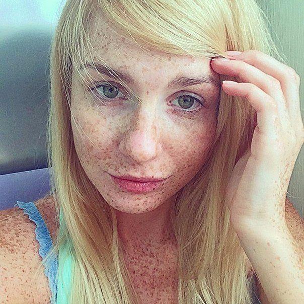 Cum scăpăm de petele pigmentare rapid, ușor și sigur! Bună tuturor! Mă numesc Corina, am 25 ani. Mulți mă întreabă de ce...