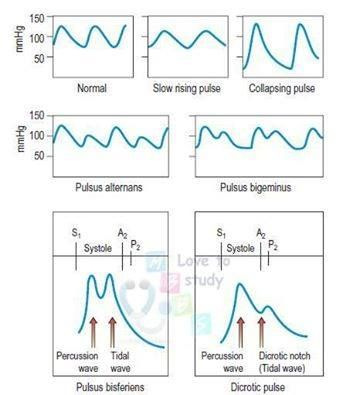 Different characters of Arterial Pulses.  Collapsing pulse is apparent in conditions such as Aortic regurgitation and Patent ductus arteriosus