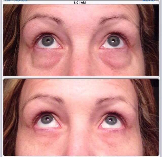 Look at these AMAZING results.  Just in two minutes the bags are gone. This will last 8 - 10 hours. Our skin line works hand in hand to make these results permanent over time.  http://2minuteskinmiracle.com/CP1/?u=871