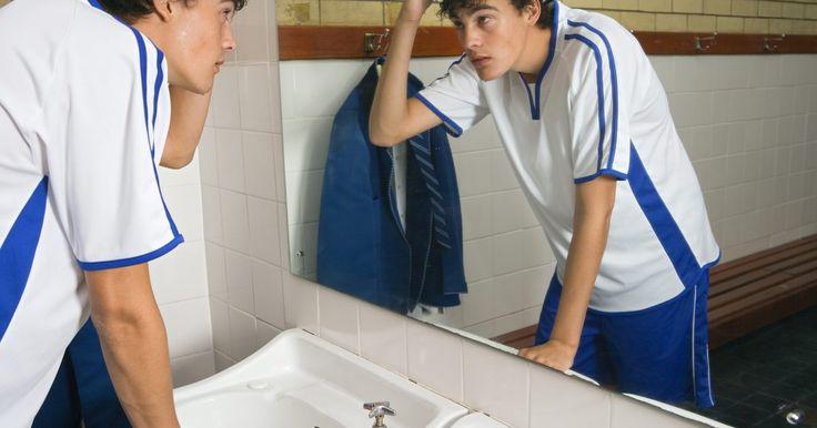 Quais são os tratamentos para poros dilatados e cicatrizes de acne?. Cicatrizes devido a acne em geral aparentam ser depressões circulares e a pele pode parecer ondulada se a estrutura interna estiver lesionada. Os três tipos de cicatrizes em depressão devido a acne são as que parecem poros dilatados, cicatrizes que lembram furador de gelo e cicatrizes arredondadas.