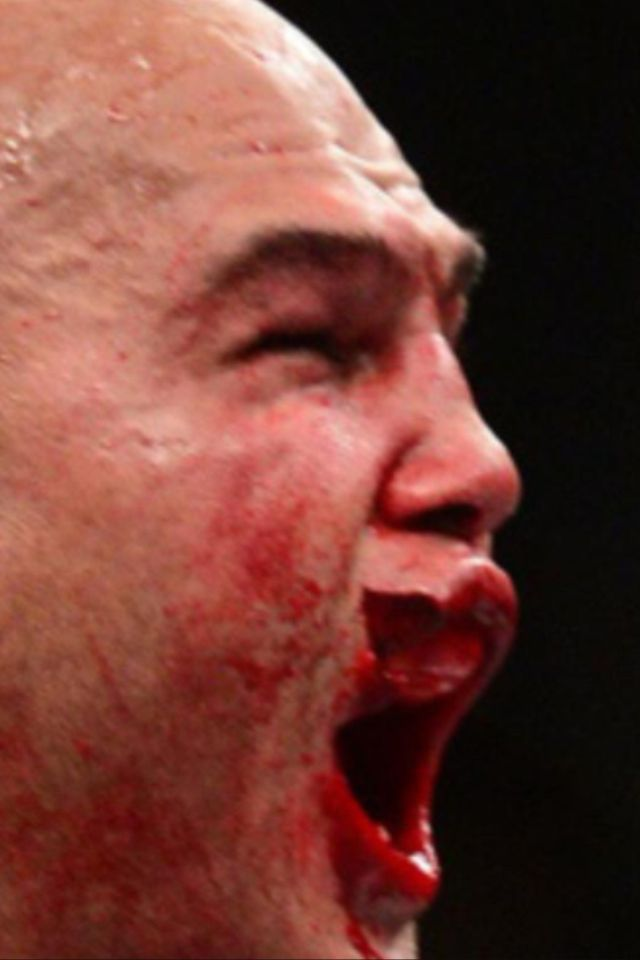 Robbie Lawler after his recent battle with Rory Macdonald.