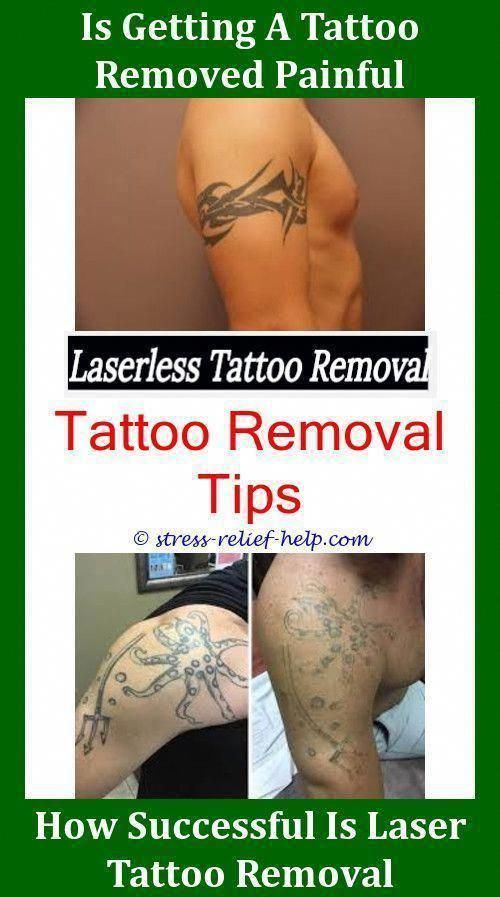 Colorful Tattoo Removal Tattoo Removal Results Laser Tattoo Removal Jobs Tattoo Removal Keloid Laser Tattoo Removal Tattoo Removal Cost Tattoo Removal Results