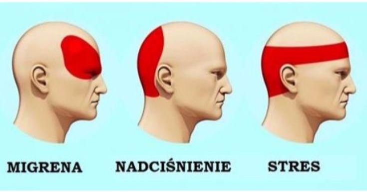 Oto jak skutecznie pozbyć się bólu głowy w zaledwie 5 minut. Od dziś tabletki będą zbędne!