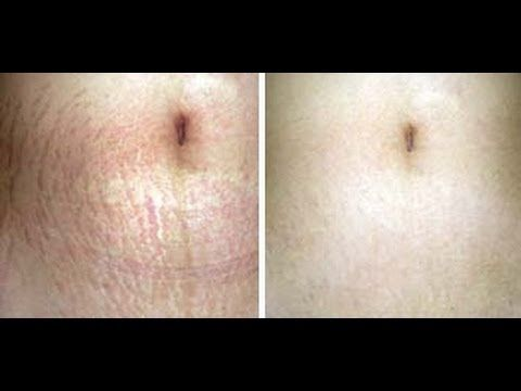 Skin after Baby  Amazing Video!!! This girl shares her routine for how she got rid of her stretch marks. I gotta try this!!!