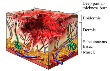Deep Partial Thickness 2nd-Degree Burn.  Caused by intense radiant energy; scalding liquids, hot semisolids or solids, and flame.  The epidermid is destroyed, underlying dermis is damaged, some epidermal appendages remain intact.  Wound is pale and has decreased moistness.  Absent or prolonged blanching.  Intact sensation to deep pressure, but not to pin-prick.  Prolonged healing of >21 days, which may require skin grafting to complete healing with functional outcome.