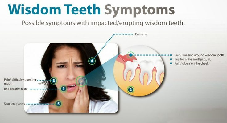 Health Benefits Of Wisdom Tooth Extraction