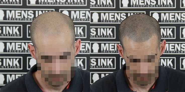 Tricopigmentazione effetto rasato www.mens-ink.com Scalp micropigmentation shaved effect www.mens-ink.com