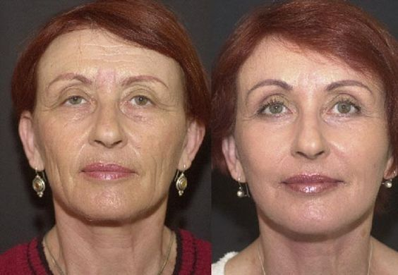 Tasking Acupressure Facelift Toning Massage To Remodel Your Face And Neck