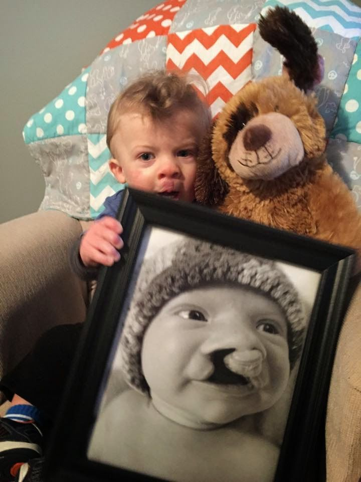 William was born with a BCLP on 9/20/13. He has had lip, nose, gum, and palate closure. See his journey here!