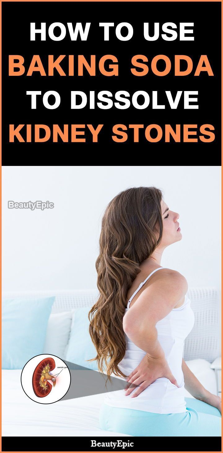 How to dissolve kidney stones quickly with baking soda
