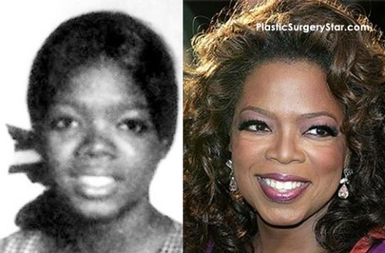 Oprah Plastic Surgery Why Do They Try To Be To Be Lighter