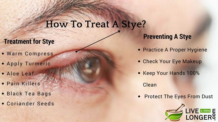 "A stye is a bacterial infection on eye, which is caused by a bacterium named ""Staphylococcal"". A stye is a tiny red-lump that appears along lash line either on eye's inner corner or on eyelids. https://www.livealittlelonger.com/how-to-treat-a-stye/"