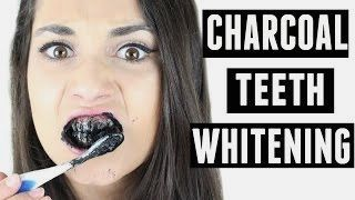 activated charcoal teeth whitening powder examine