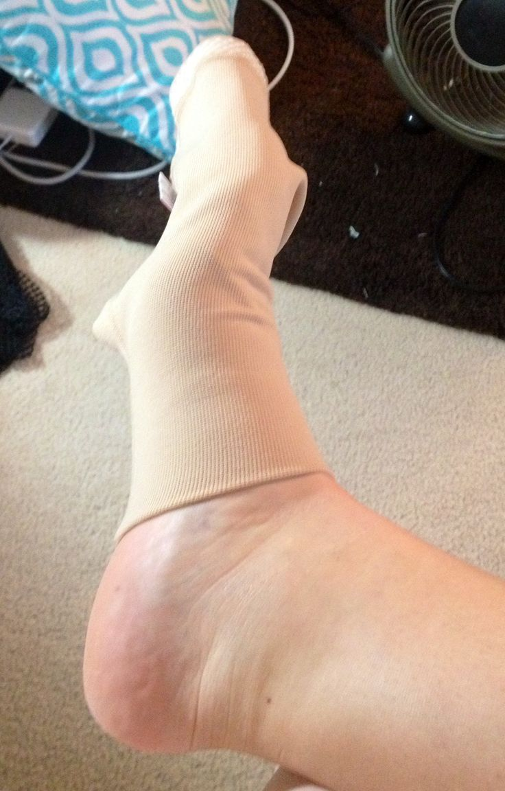 Me & My Compression Stockings | Graceful Lymphedema