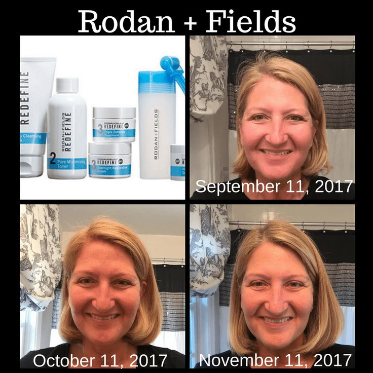 Rodan + Fields – A Two Month Trial – Part 2 Several months ago I did a vlog review of Olay Regenerist Anti Aging Cream.  As a result of that video, Joanna Pritchard, a Rodan + Fields Representative, reached out...