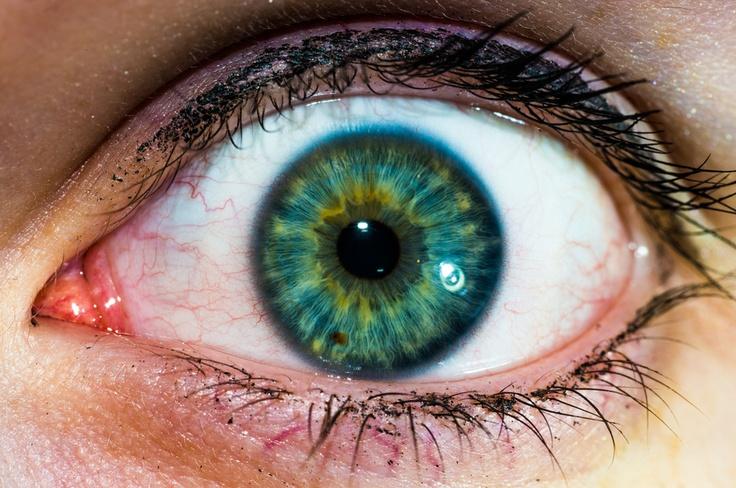 My sister's eye