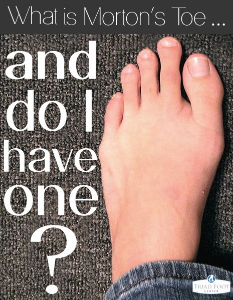 Have a long second toe? Do you have Morton's Toe? It may be harmless now, but consider seeing a podiatrist for this condition. Here's why: http://www.triadfoot.com/2014/03/25/mortons-toe-one/ #feet #toes #podiatry #mortonstoe #healthy #goodfeet