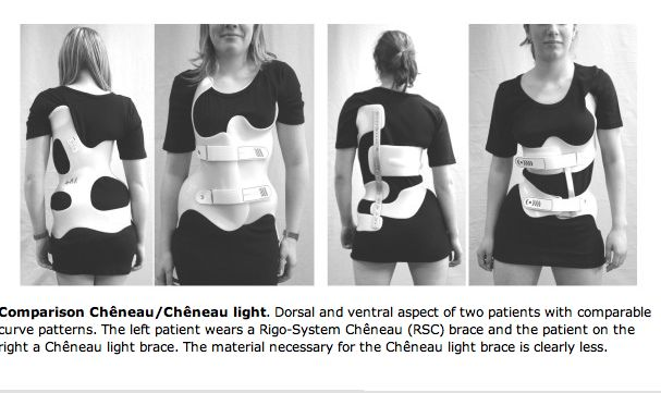 a comparison of two current brace types used in Scoliosis Treatment (http://www.scoliosisjournal.com/content/2/1/2) , 2007.