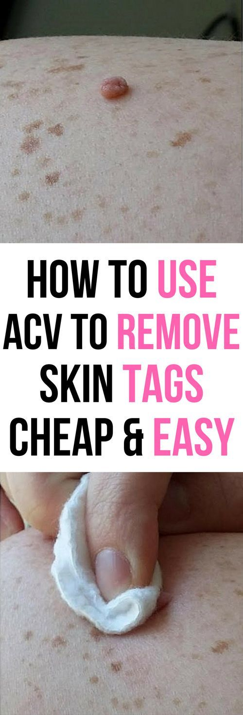 How To Use Apple Cider Vinegar To Remove Skin Tags – Easy and Natural!