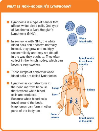 hodgkin's lymphoma stages | Quick reference cards - Non-Hodgkin's Lymphoma (NHL) - Patient ...