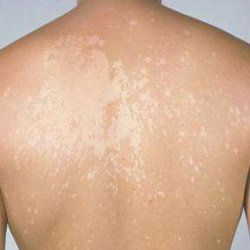 Skin Discoloration Home Remedies, Natural Treatments And Cure | Herbal Supplements