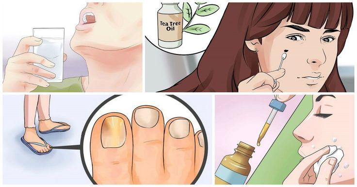 10 причин держать в аптечке масло чайного  дерева