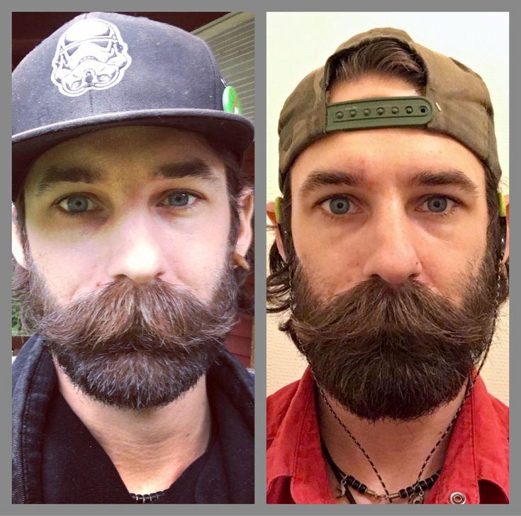 усы до и после картинки имеет специфические