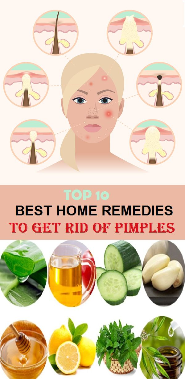Top 10 Home Remedies to Get Rid of Pimples