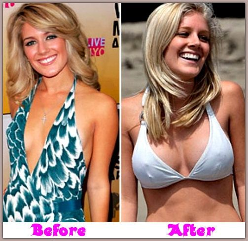 Heidi montag plastic surgery before and after     #celebrity