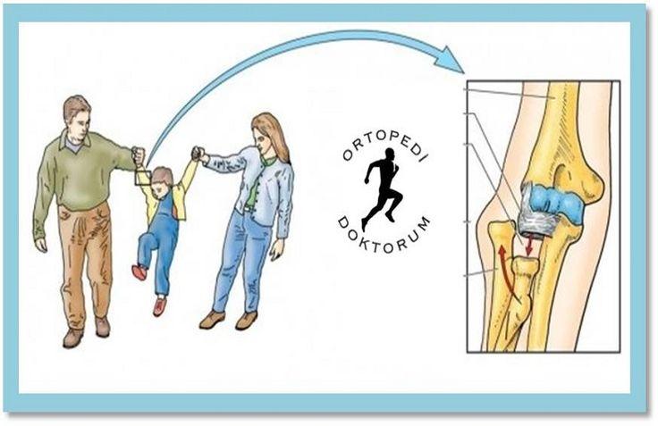 Dadı Dirseği (Ağrılı pronasyon, pulled elbow) - Şeref Aktaş