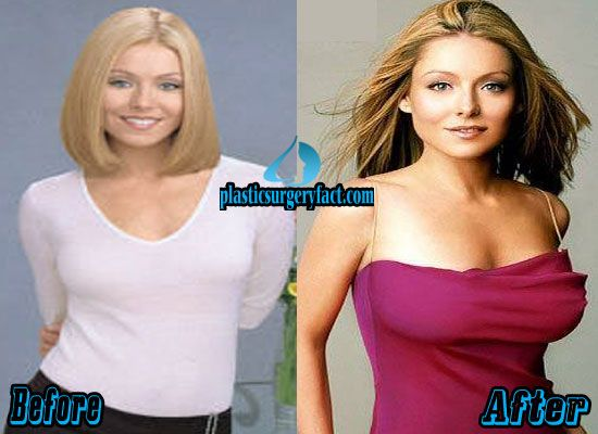 Young Breast Augmentation Before And After 221 best Celebrity Bef...
