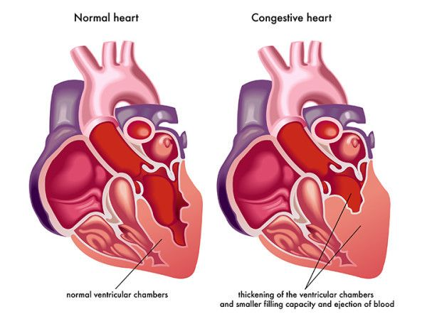It's a challenging condition, but a heart failure prognosis is more encouraging now than ever before. http://universityhealthnews.com/daily/heart-health/what-is-congestive-heart-failure/