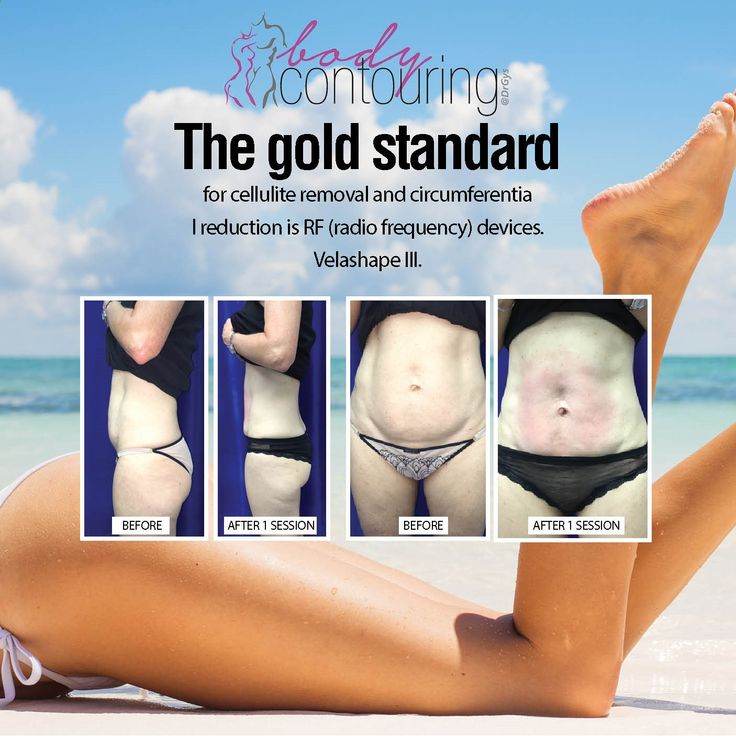The gold standard for cellulite removal and circumferential reduction is RF (radio frequency) devices. Velashape III. For more information or bookings contact hello@drgys.com #contouring #bestoftheday #love #health #motivation #beautiful #inspirational #motivational #drgys #Beauty #Skin #Aesthetics #HealthTips #SkinTips#vacation #holid#colorful #girl #travelling #sun #picoftheday