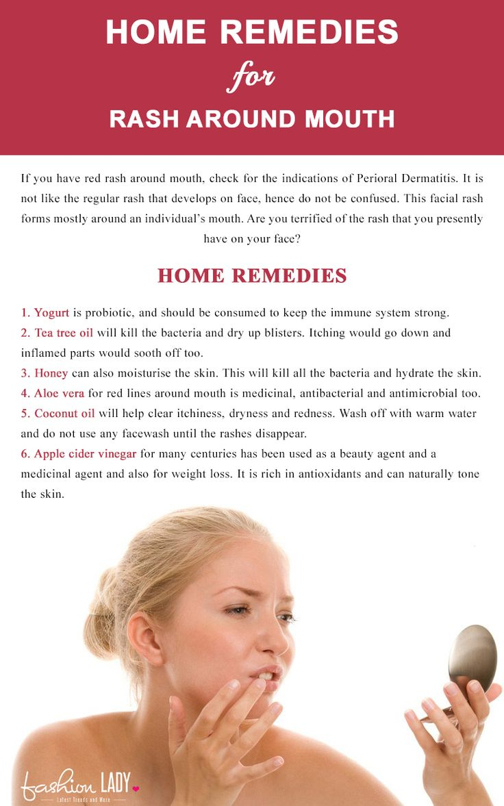 Home Remedies For Rash Around Mouth