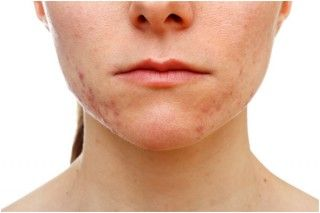 How To Remove Pimples On Chin?