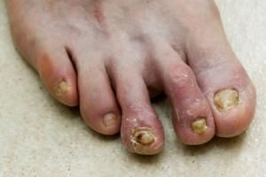 How do you Treat Toenail Fungus with Lasers?: Toenails infected with fungus