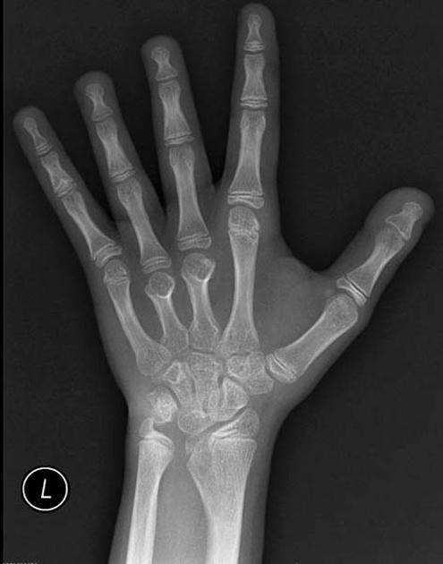 Short metacarpals in Turner syndrome | Radiology Case | Radiopaedia.org